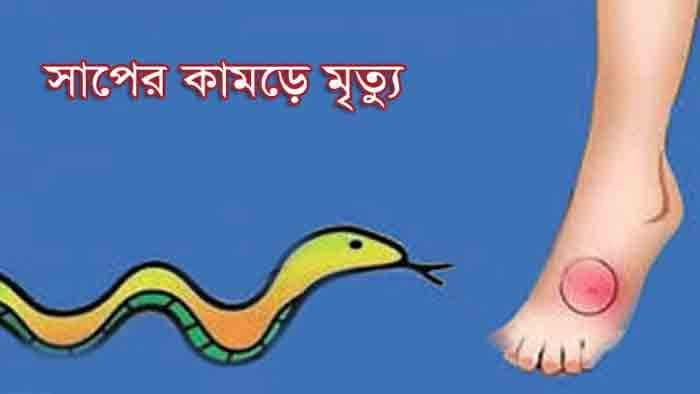 চাঁপাইনবাবগঞ্জের শিবগঞ্জে সাপের কামড়ে গৃহিনীর মৃত্যু