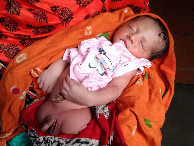 চাঁপাইনবাবগঞ্জে পা ছাড়াই জন্ম নিল ছেলে সন্তান, দেখতে উৎসুক জনতার ভিড়